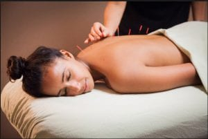 therapist using acupuncture needles for treatment